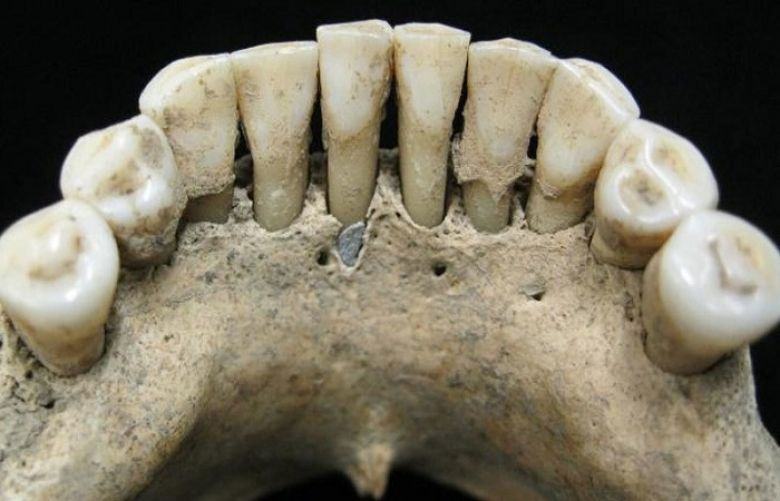 Medieval woman's art career revealed by blue stains on teeth