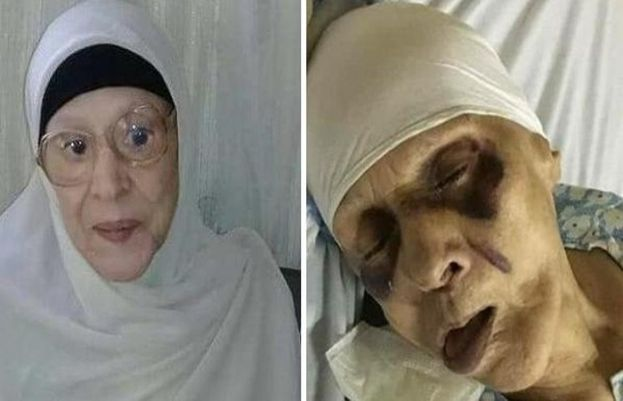Zeinab died in El-Mabarra Hospital in Port Said after suffering from a brain clot.