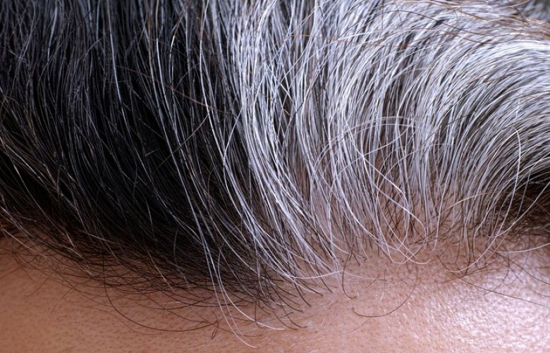 Some horrible causes of white hairs