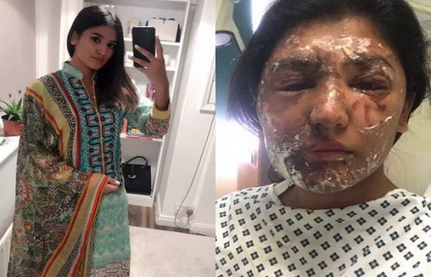 Resham Khan after and before her recovery