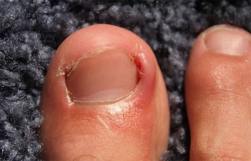 Ingrown Toenail: Remedies, When to See Your Doctor - SUCH TV