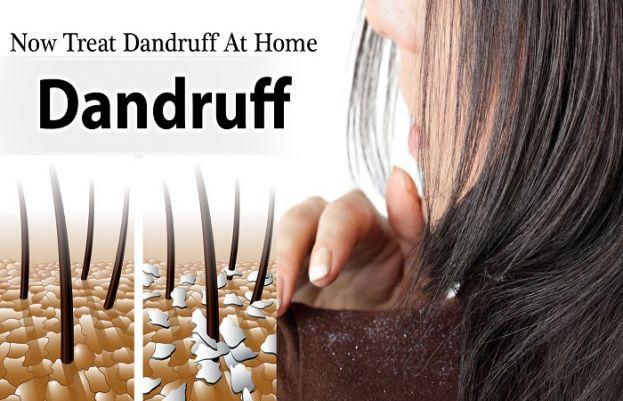 Remedies To Treat Dandruff At Home