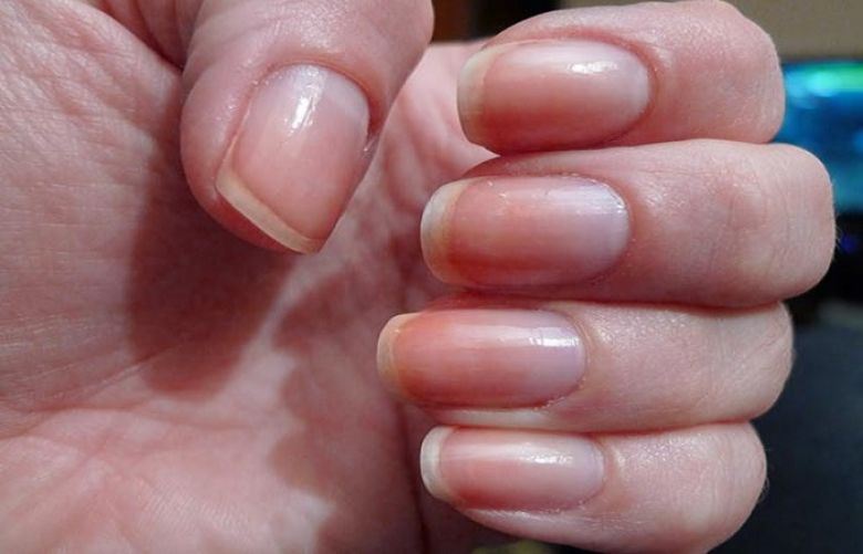 Nails Can Reveal Your Health