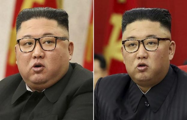 The health of North Korean leader Kim Jong Un