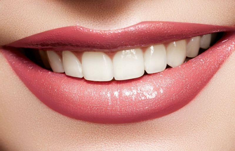 White teeth make you more attractive
