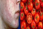 Anti-acne: Some skin-friendly food