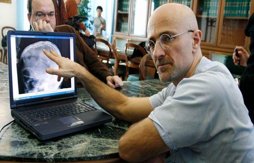 УКитаї хірурги пришили людську голову домертвого тіла